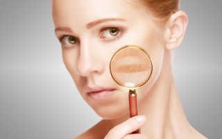 Удаление темных пятен на лице. Как удалить пигментные пятна
