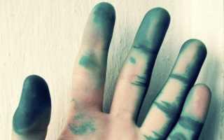 Как и чем отмыть зеленку с кожи, волос, ногтей. Как отмыть зеленку