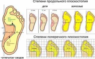 Ладомед индивидуальные стельки. Ортопедические стельки для детей