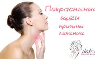 Покраснение шеи. Возможные причины покраснения шеи и лечение раздражения