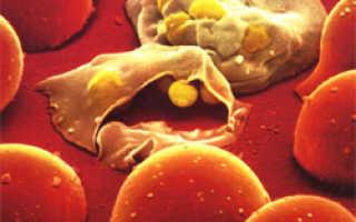 Беременность и малярия. Малярия
