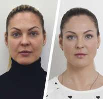 Инъекции для лица омолаживающие и косметические