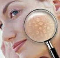 Причины жирной кожи на лице. Жирная кожа