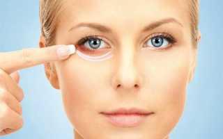 Синяк под глазом: лечение. Как избавиться от синяка под глазом