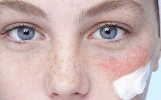 Как сделать кожу плотнее. Уход за тонкой кожей лица