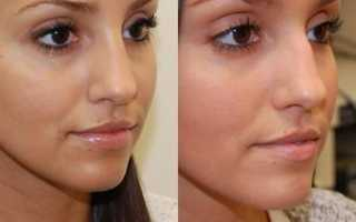 Как уменьшить нос гимнастикой. Уменьшение носа с помощью макияжа