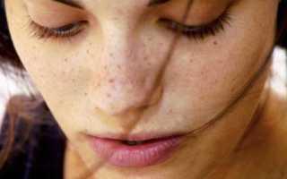 Удалить пигментацию на лице. Как вывести пигментные пятна